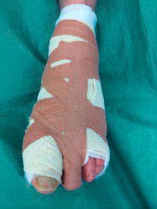 повязка после операции