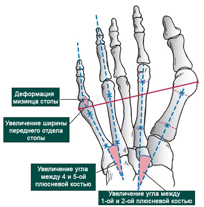 причины деформации пятого пальца