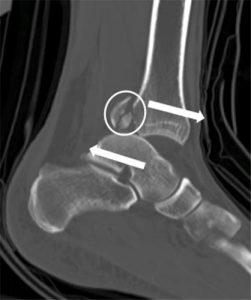 томограмма перелома задней лодыжки