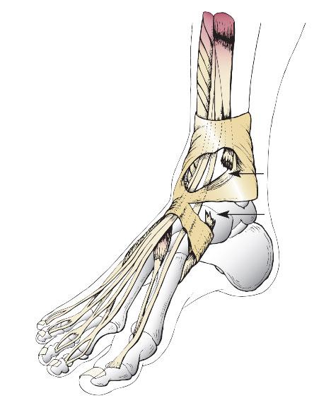 разрыв сухожилия передней большеберцовой мышцы