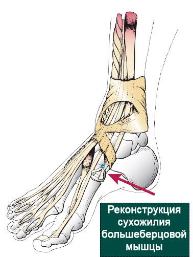 реконструкция сухожилия большеберцовой мышцы