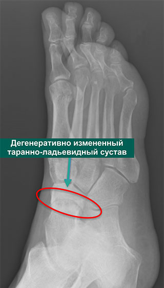 Рентгенограмма в косой проекции