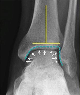 нормальный голеностопный сустав