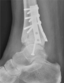 стабилизация трехлодыжечного перелома пластинами и винтами