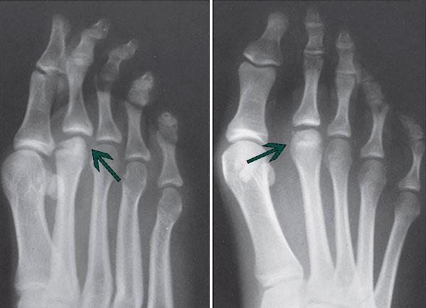 рентген болезнь-келлера