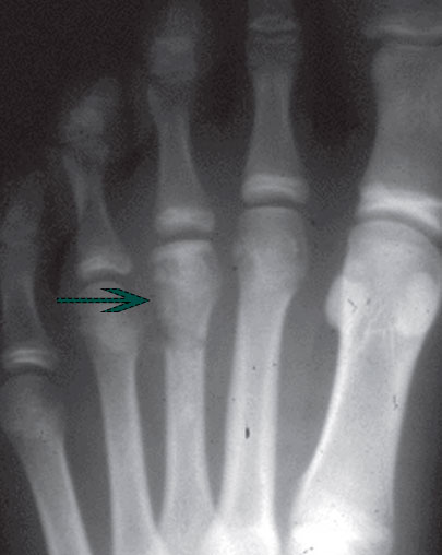 снимок рентгена болезни Келлера