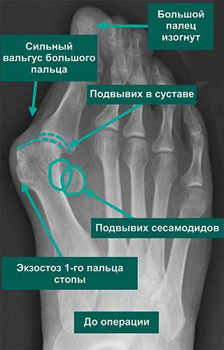 Рентгенограммы до коррекции тяжелой вальгусной деформации