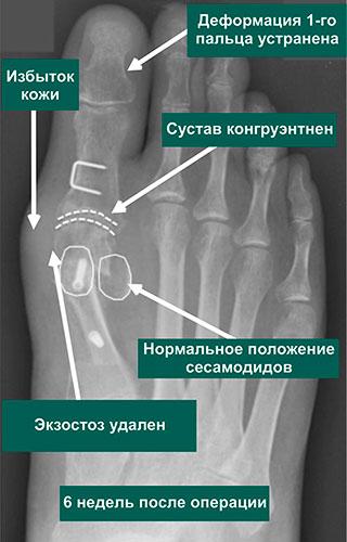 коррекция тяжелой вальгусной деформации 1-го пальца стопы