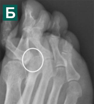 Рентгенограммы в косой проекции