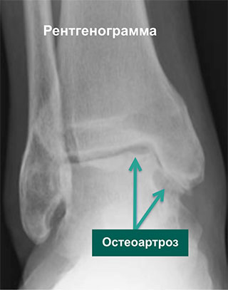 рентген и мрт артроз голеностопа