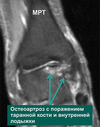 дегенеративное поражение голеностопного сустава