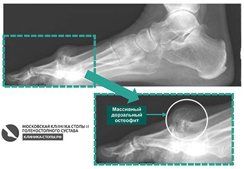 остеоартрозом 1-го ПФС