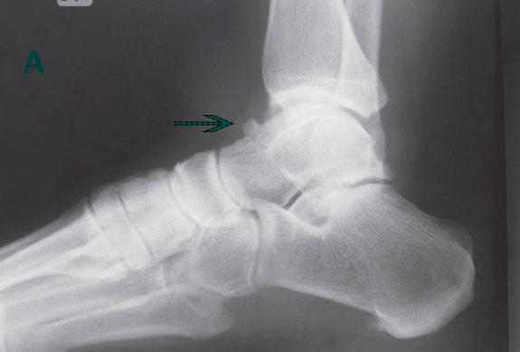 рентген остеофита таранной кости