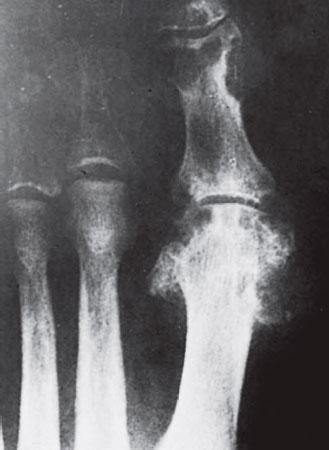 рентген подагра первого пальца