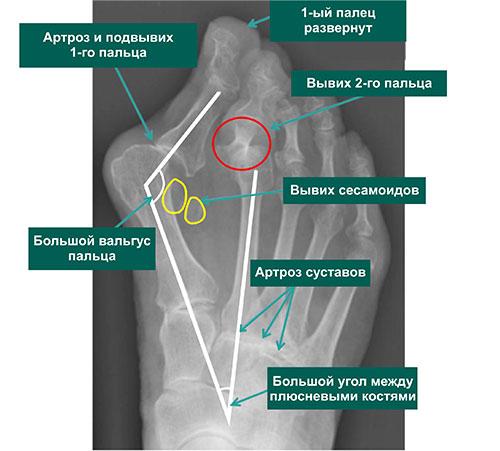 Рентгенограмма с вальгусной деформацией