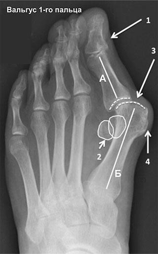 вальгусная деформация 1-го пальца