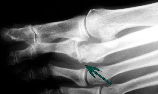 рентген вывих пальца