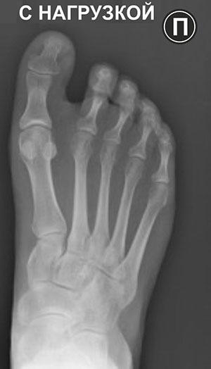 рентгенография правая нога