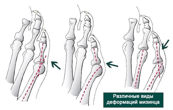 рентгенография различных деформаций мизинца стопы