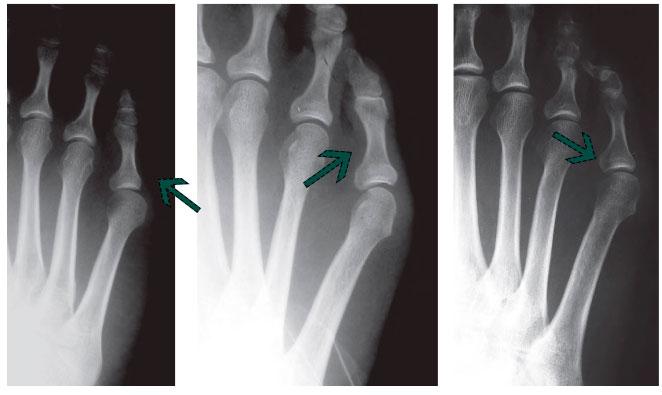 рентгенография различных деформаций 5 пальца стопы