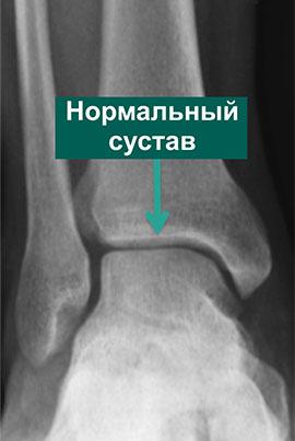 Рентгенограмма нормального голеностопного сустава