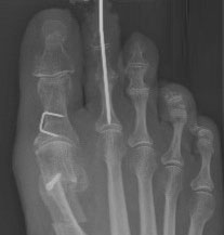 молоткообразная деформация второго пальца