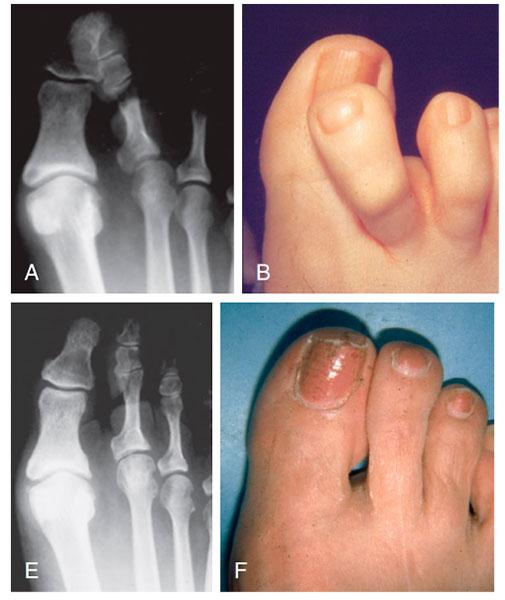 Результат операции на перекрещивающихся пальцах