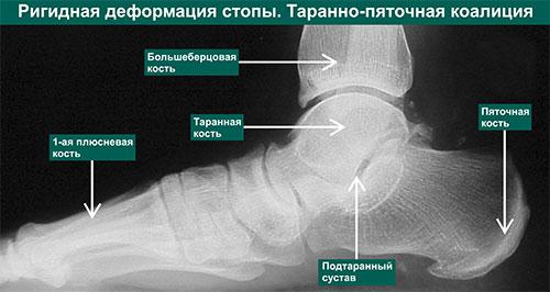 Ригидная деформация стопы