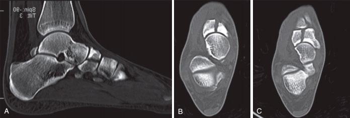 Краевой перелом ладьевидной кости стопы