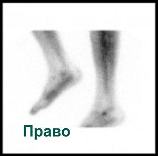 Сцинтиграмма справа