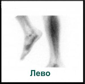Сцинтиграмма левая нога