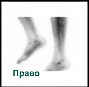 Сцинтиграммы правой ноги