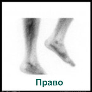 Сцинтиграмма правая нога