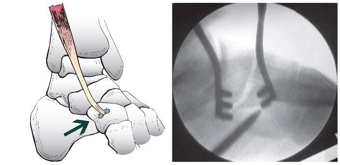 шов сухожилия передней большеберцовой мышцы