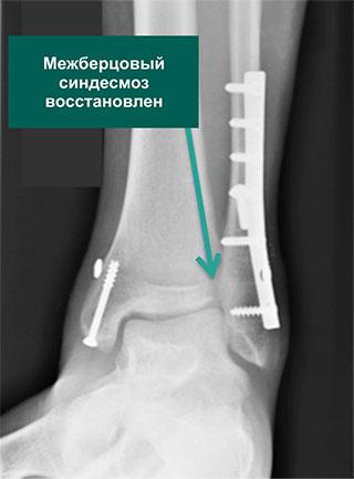 анатомичная репозиция переломов