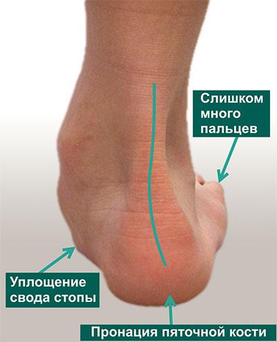 Симптом слишком много пальцев