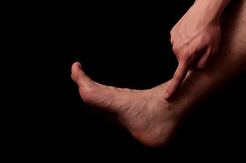 симптомы переднего импиджмента голеностопа