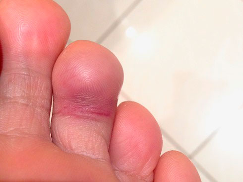 симтомы переломов пальцев