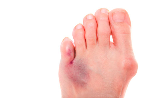 симптомы переломов плюсневых костей
