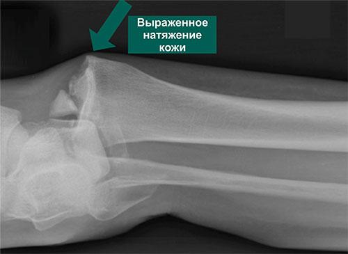 Рентгенограмма переломо-вывиха стопы