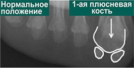 положение сесамовидных костей в норме