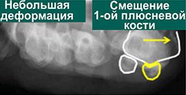 сесамовидные кости в норме и при вальгусной деформации 1-го пальца
