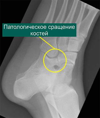 Послеоперационная рентгенограмма после коалиции