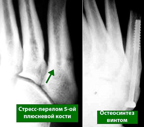 лечение стресс перелома 5-ой плюсневой кости