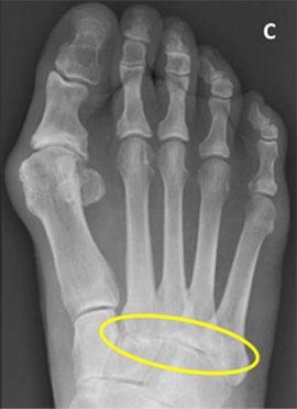 остеоартроз суставов среднего отдела стопы