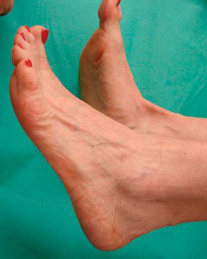свисание стопы при разрыве сухожилия большеберцовой мышцы