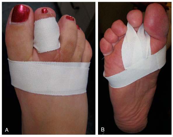 тэйпирование пальцев стопы