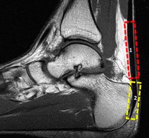 Тендопатия ахилла на МРТ
