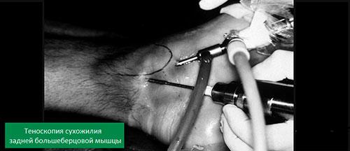 Теноскопия сухожилия большеберцовой мышцы