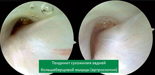 Теноскопия сухожилия задней большеберцовой мышцы